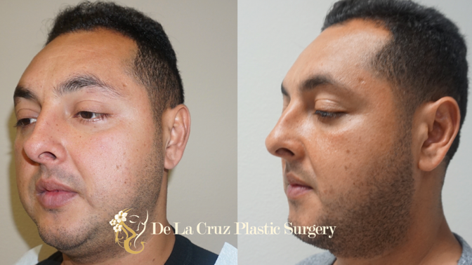 Buccal Fat Removal | Bichectomia in Houston, Texas