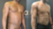 best Hi-Def liposuction in the USA VASER