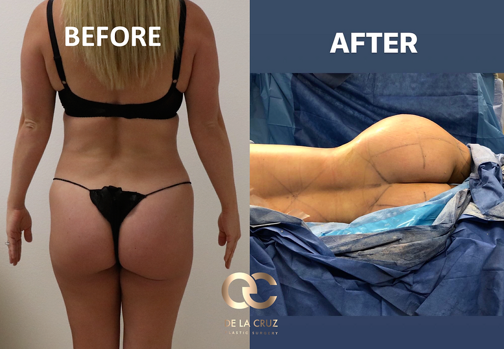 Vaser Liposuction with fat transfer (BBL) performed by Dr. De La Cruz