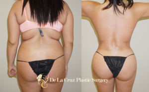 Large-volume VASER Liposuction with fat transfer to the buttocks performed by Dr. De La Cruz.