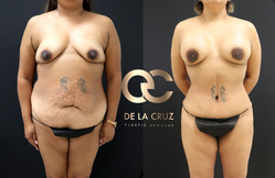 best tummy tuck in houston.png
