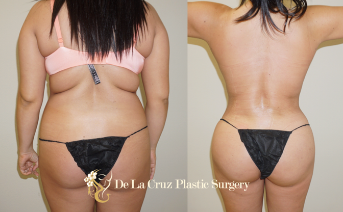 Post-Operative Care to Speed up Brazilian Butt Lift Recovery