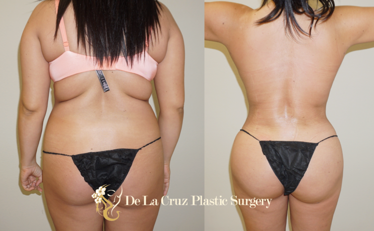 VASER Liposuction with fat transfer to the buttocks (BBL) performed by Dr. De La Cruz.