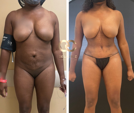 Best tummy tuck Before & After in the USA Houston Texas.png