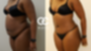 best tummy tuck in houston .png