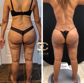 best vaser lipo360 liposuction doctor.pn