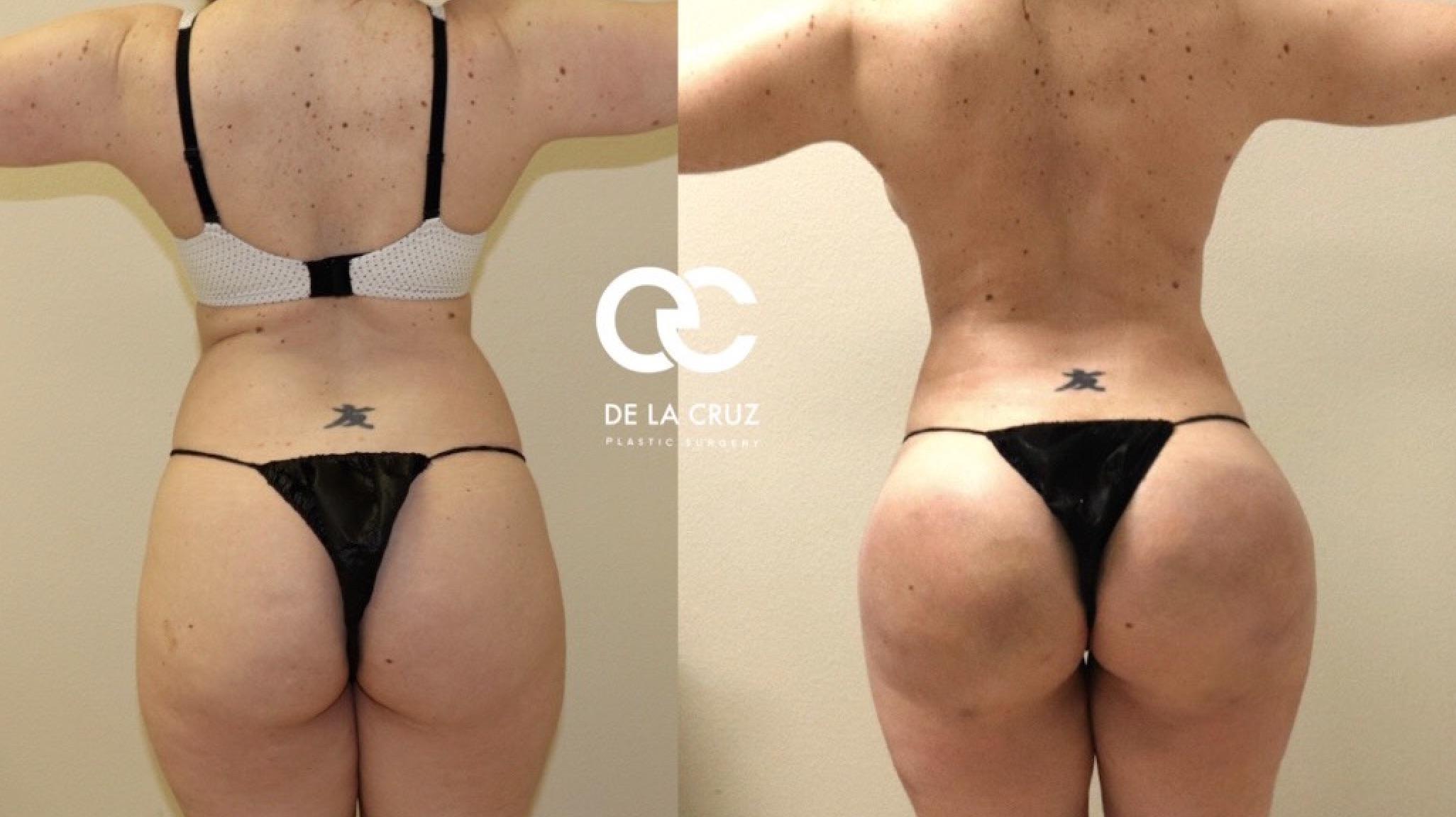 Factors Affecting Fat Grafting Success in Brazilian Butt Lift