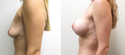 Dual-Plane Breast Augmentation with High-Profile Silicone Breast Implants performed by Houston Plastic Surgeon, Emmanuel De La Cruz MD