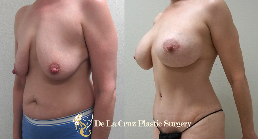 Abdominoplasty performed by Dr. De La Cruz