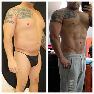 VASER Hi-Def Liposuction