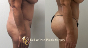 Brazilian Butt Lift: One of the Fastest Growing Plastic Surgery Procedures in America