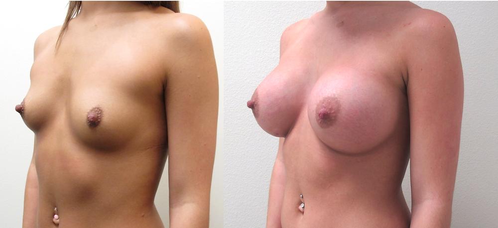 Breast augmentation with implants performed by Dr. De La Cruz.