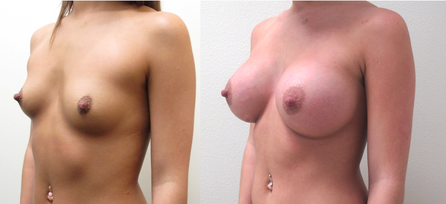 Dual-Plane Breast Augmentation with Silicone Breast Implants performed by Houston Plastic Surgeon, Emmanuel De La Cruz MD