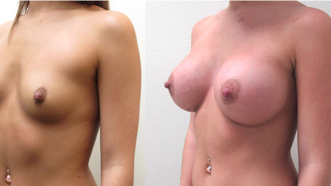 Custom-Built Choices for Breast Augmentation