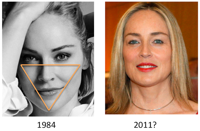 The Fine Art behind Facial Fat Transfer  Houston