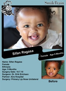 Smile Train & Operation Smile of the Month