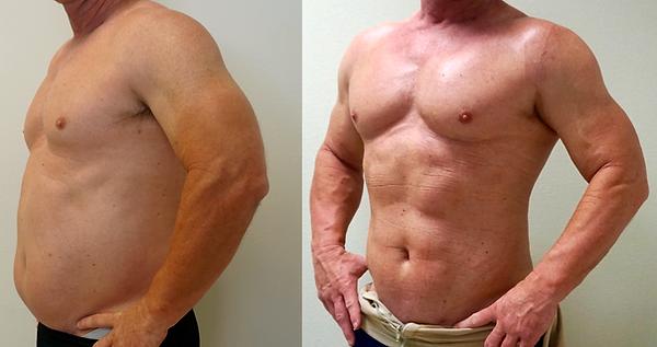 4D VASER Hi-Definition Liposuction Abdom
