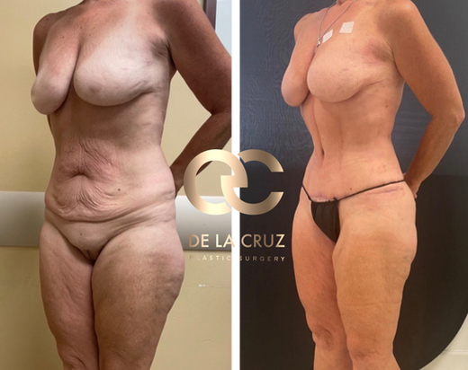 Best abdominoplasty before and after in Houston Texas USA.png
