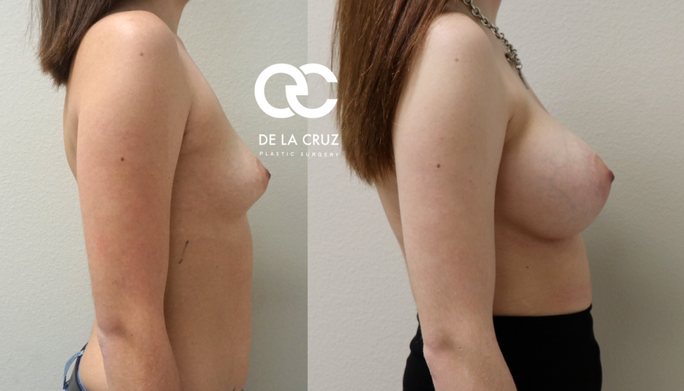 best breast augmentation in houston.png