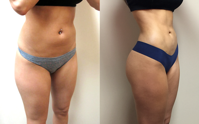 4D VASER Hi-Definition Liposuction in Houston, Texas
