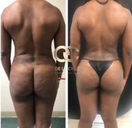 best liposuction in Houston USA De La Cr
