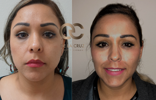 Face Contouring with Buccal Fat Removal