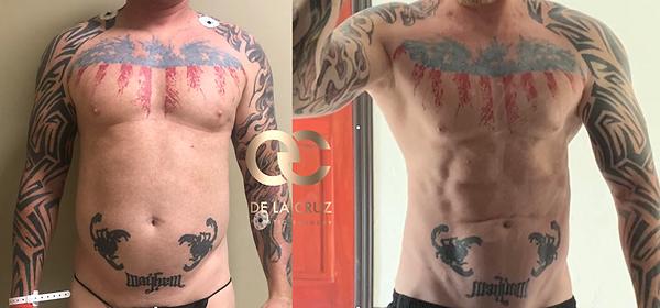 best 4D VASER H-Def liposuction in the w