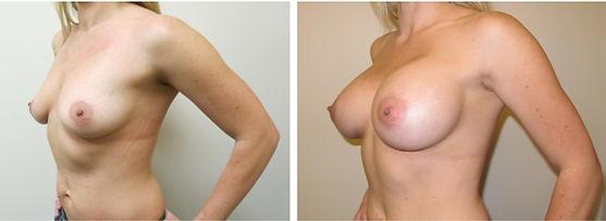 woodlands plastic surgeon houston newy o