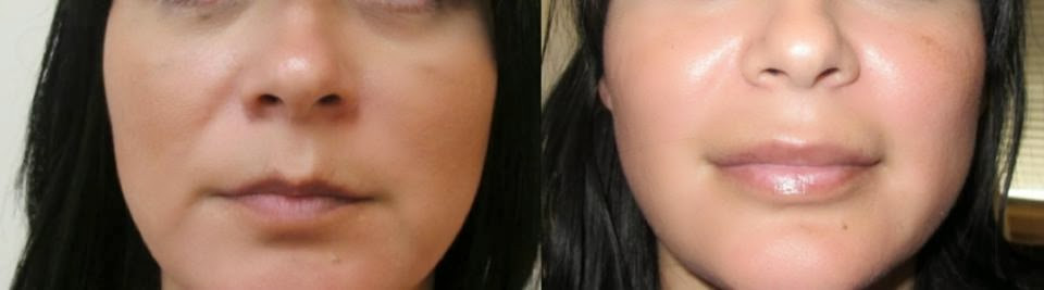 Lip augmentation with Permalip implant performed by Dr. De La Cruz.