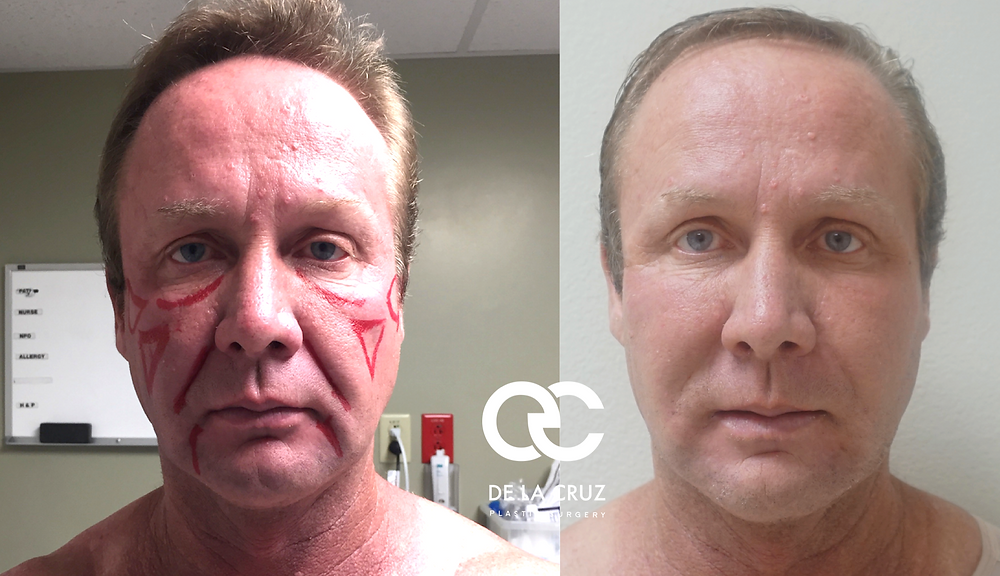 VASER Liposuction and fat transfer to the face performed by Dr. De La Cruz