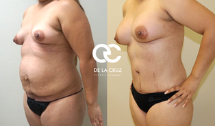 Before & After Abdominoplasty (Tummy Tuck) with VASER liposuction of the flanks performed by Houston Plastic Surgeon Emmanuel De La Cruz  M.D.