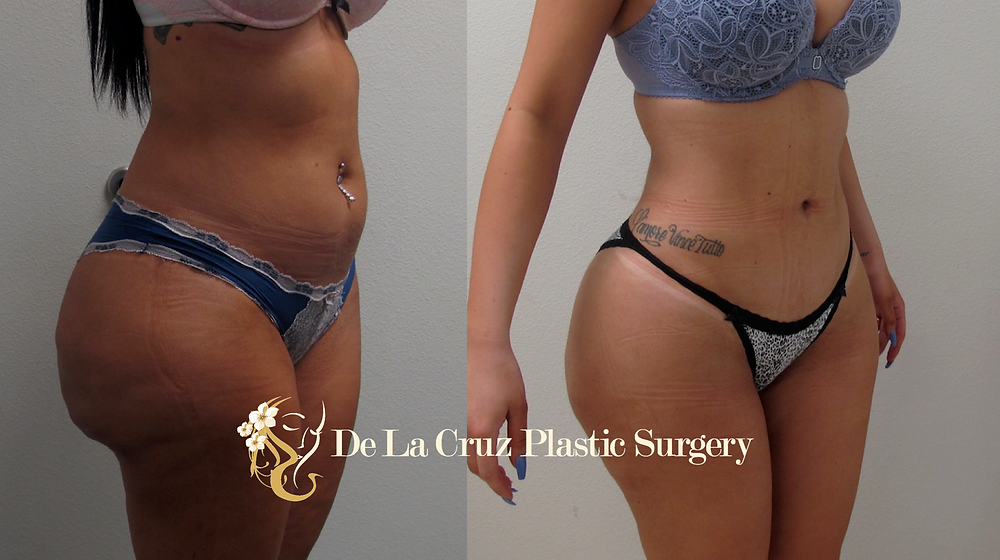 Before and after Biopolymer removal with VASER Liposuction and fat transfer performed by Dr. De La Cruz.