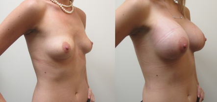 Dual-Plane Breast Augmentation with Silicone Breast Implants performed by Houston Plastic Surgeon, Emmanuel De La Cruz MD