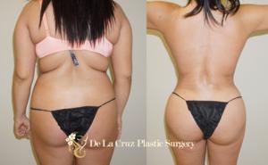 Brazilian Butt Lift with 4D VASER Hi-Def Liposuction performed by Emmanuel De La Cruz MD, Houston Plastic Surgeon