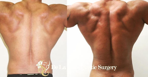 VASER liposuction back best plastic surg