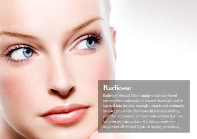 Facts You Need to Know about RADIESSE