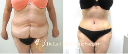 Before & After Abdominoplasty (Tummy Tuck) with VASER liposuction of the flanks and back performed by Houston Plastic Surgeon Emmanuel De La Cruz  M.D.