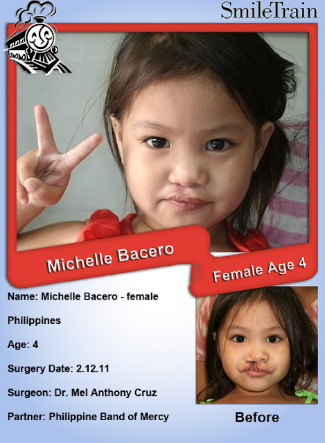 Smile Train of the Week ~ Philippines