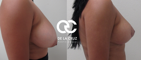 breast lift houston breast reduction houston texas 77380 77056.png