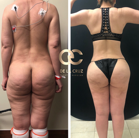 best liposuction before and after.png