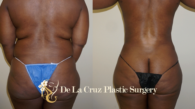 Large Volume Liposuction may Improve Diabetes & Hypertension