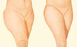 Lifting de coxa: Cirurgia que retira flacidez nas pernas