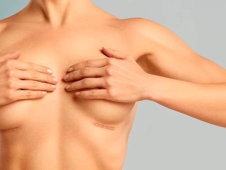 Mamoplastia e suas vertentes - aumento e redução de mamas