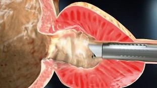 Hipertrofia benigna de prostata