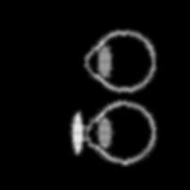 Hipermetropía y tratamiento con lentes convergentes