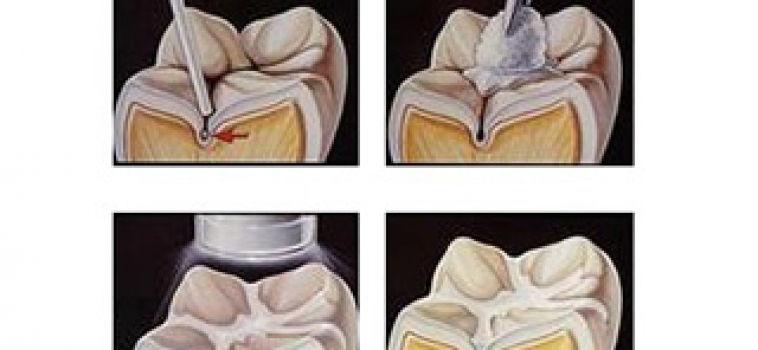 Dentista zaragoza