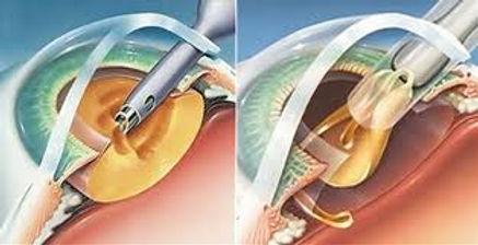 Cirugia de la presbicia