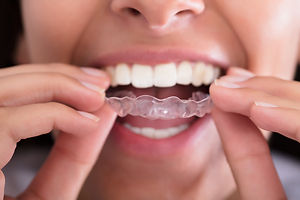 iStock-928069650-woman-clear-aligners-in