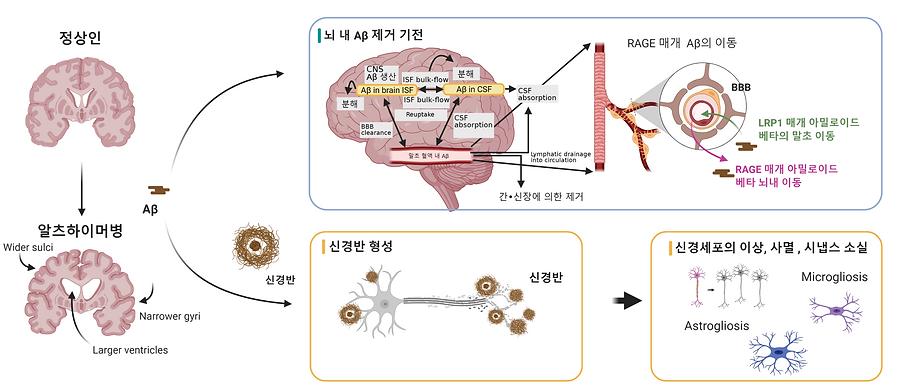 정상과 알츠하이머 뇌의 차이 (1).png