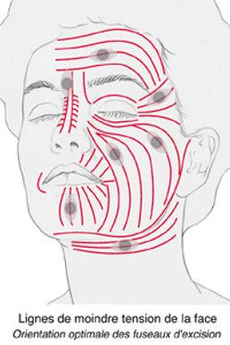 Cicatrices2.jpg